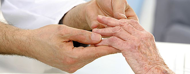 10 Types Of Arthritis Pain And The Treatments